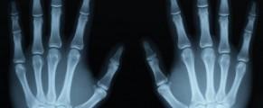 x-rayhands