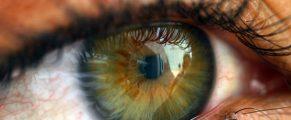 eye#1