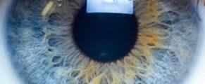 eye#5