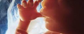 ultrasound#4